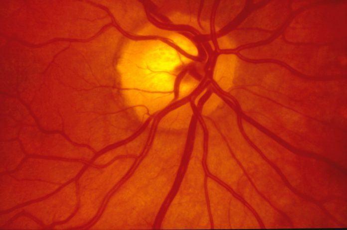 A normal human retina - Fundus photography of the back of the eye.